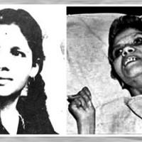 Aruna Shanbaug