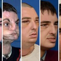 Face transplant recipient Richard Norris