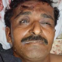 Gulam Abbas Dead