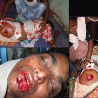 Muslim Children Were Burnt Alive In Meiktila – Burma