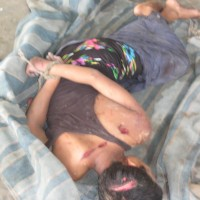 Tie-up and Killed of Rohingya
