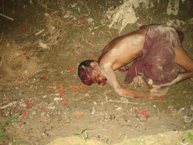 dead Rohingya body