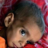 Tharparkar Child