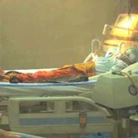 Swine flu Victim