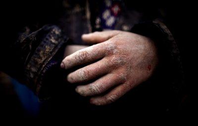 Poor Labor Hands