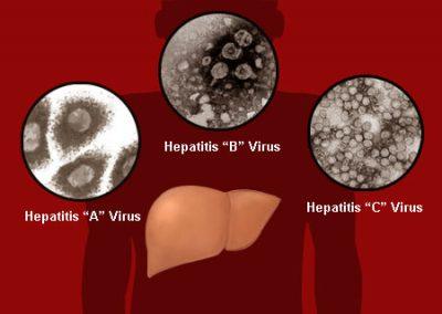 Hepatitis Viruses