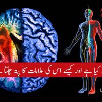 Paralysis stroke