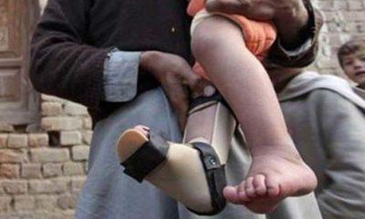 Polio Virus in Pakistan