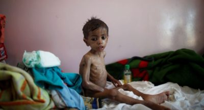 Yemen Food Shortage