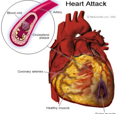 Cholesterol Heart Attack