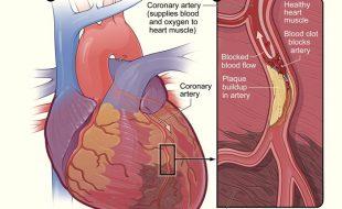 دل کی  شریانوں کی  تنگی