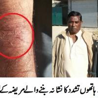 Patient Beaten
