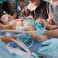 Children Surgery