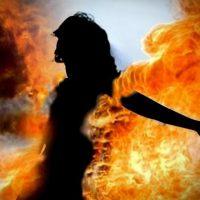 Girl Burnt