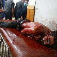Syria Bombs Attacks