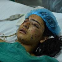 Kashmir Pellet Gun Injuries