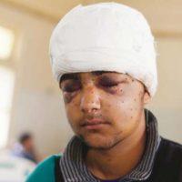 Boy from Kashmir Injured in Pellet Gun Attack