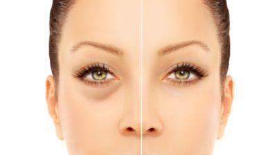 Eyes Dark Circles Women
