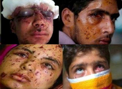 Kashmir Pellet Gun Victims