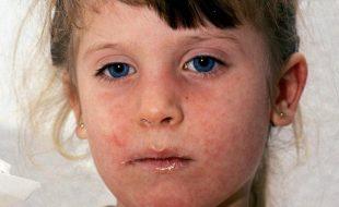 پورے یورپ میں خسرے کی وباؤں کا خطرہ، عالمی ادارہٴ صحت کی تنبیہ
